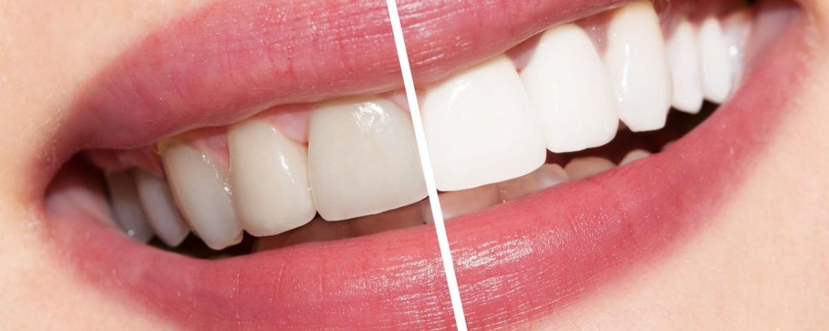 dental 16