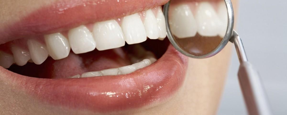 dental 5