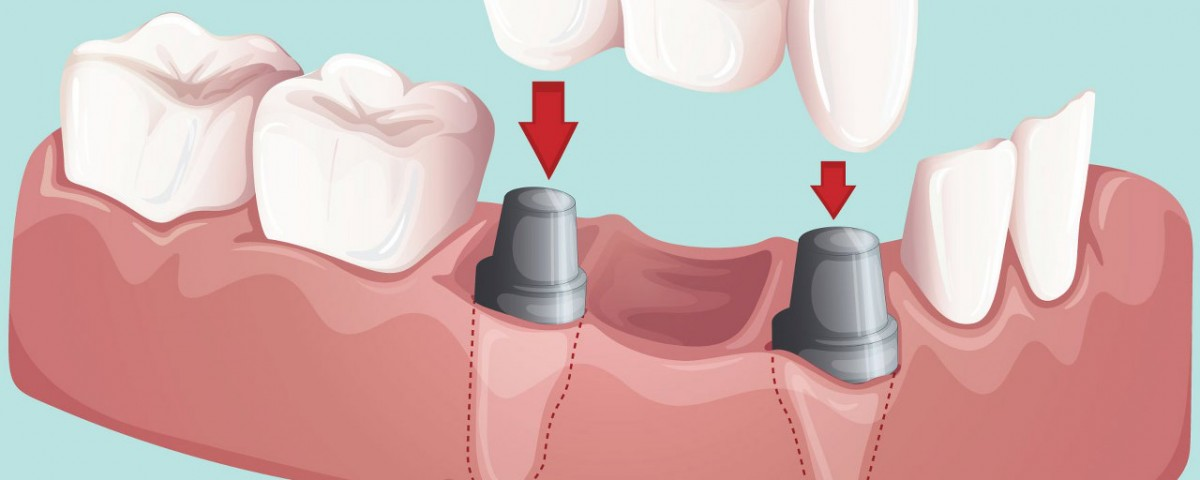 dental 6